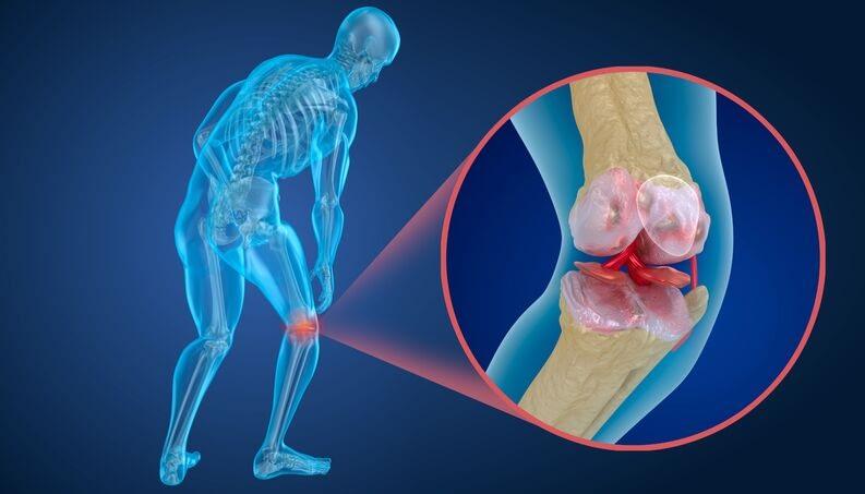 As atividades físicas podem melhorar problemas de saúde como a osteoporose